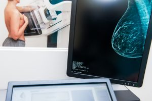 >thisisjustarandomplaceholder<Mammogram snapshot of breasts of a female patient on the monitor with undergoing mammography test on the background. Selective focus | Iberian Press®